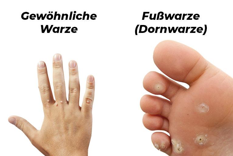 Fuß warze unterm Dornwarzen am